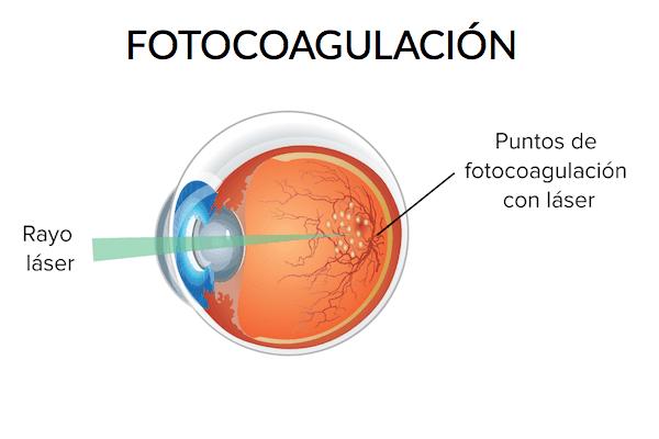 Clinica Oftalmologica en La Roma Norte Oftalmologos en Mexico Especialistas en Fotocoagulacion v002 compressor